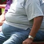 bariatric surgery_NHT