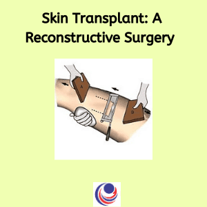 Skin Transplant_ a Reconstructive Surgery