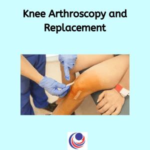 Knee arthoscopy