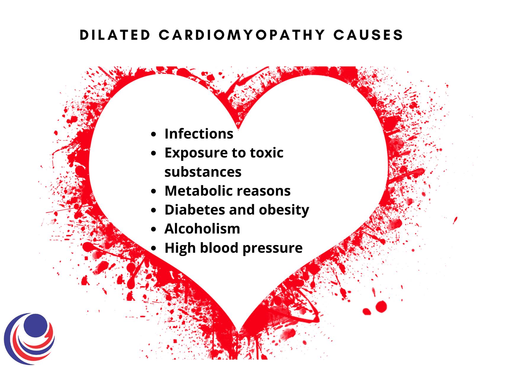 dilated cardiomyopathy causes