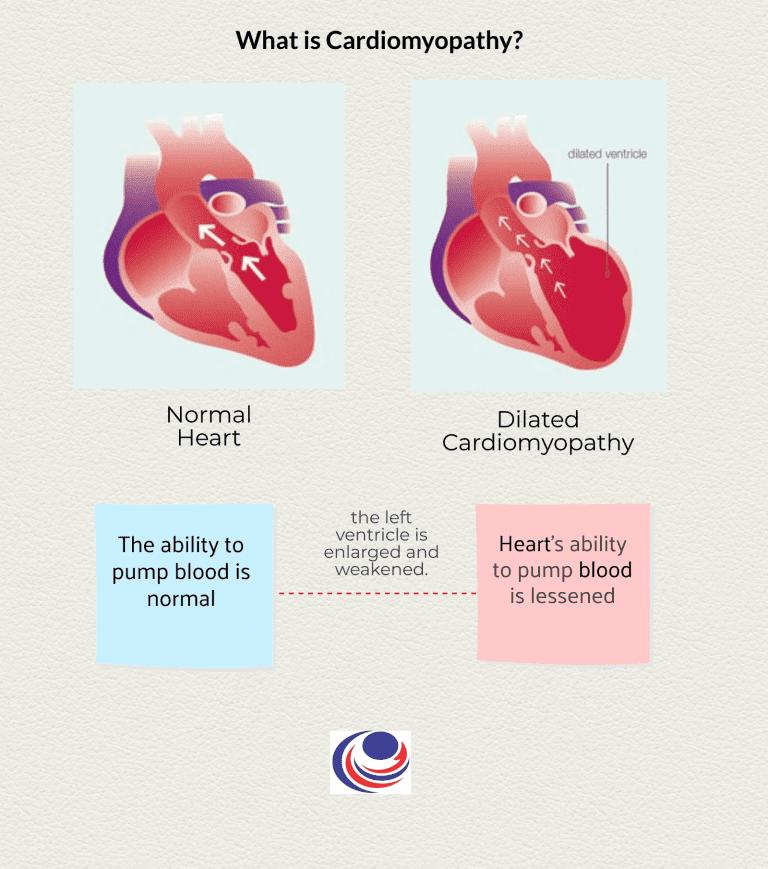 Cardiomyopathy 1