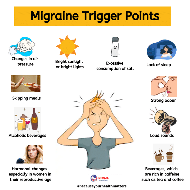 Migraine Trigger Points