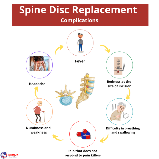 Spine Disc Replacement Complications