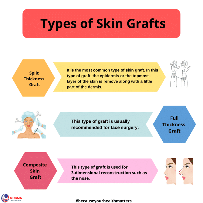 Types of Skin Grafts