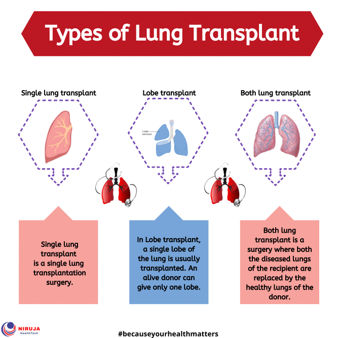 Types of Lung transplant