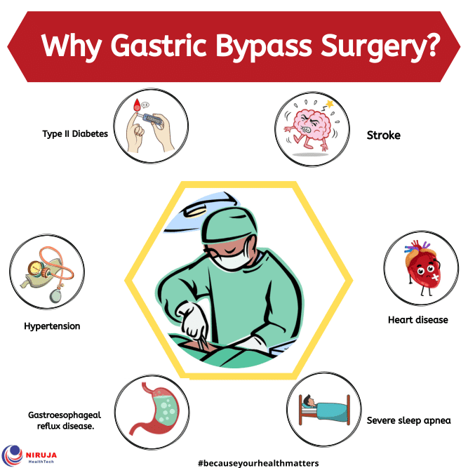 Why Gastric Bypass Surgery