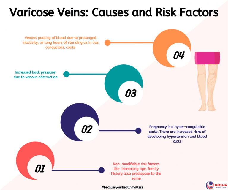 Varicose Veins: Causes and Risk Factors
