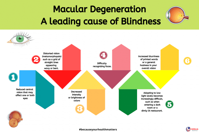 Macular Degeneration: a leading cause of Blindness