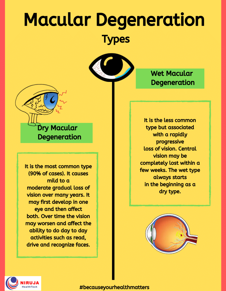 Macular Degeneration: Types