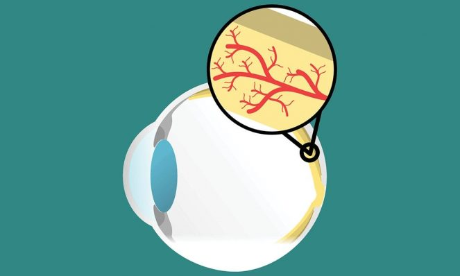 Macular Degeneration: Signs and Symptoms